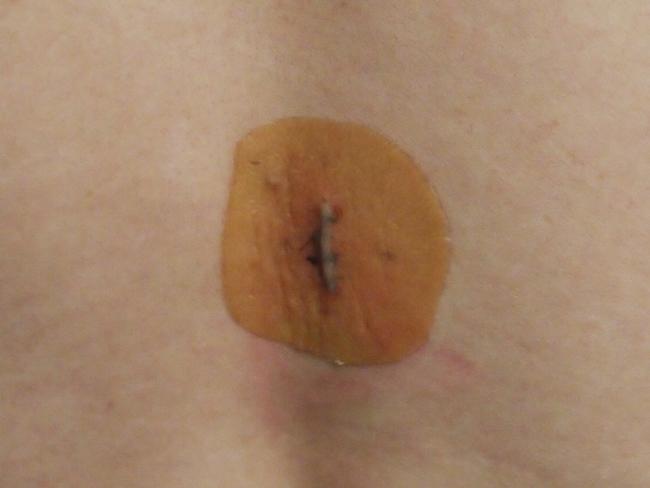 脂肪腫摘出後の傷跡