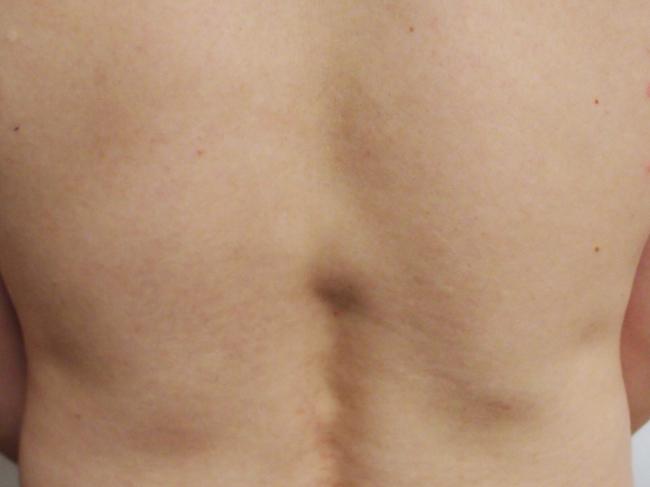 背中にできた脂肪腫